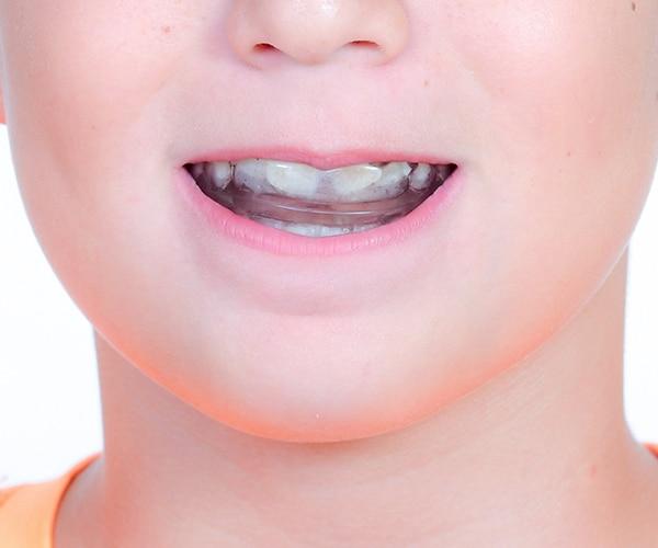 Healthystart Mouthguard Photo 2